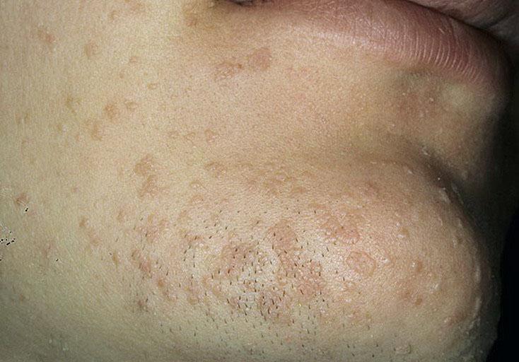 Средства мази удаления подошвенных бородавок